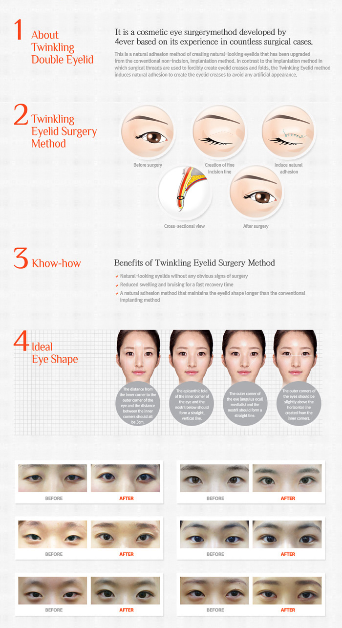 korea-double-eyelids2